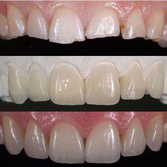 @drbrendel #restorativedentistry#veneers#dentist#dentistry#estheticdentistry#composites#3M#ivoclair#tokuyama#shofo#clinic#invasiline#surgery#dentalsurgery#dentalcollege#sirona#periodontics#prosthodontics#endodontics#pedodontist#odontologia#odonto#dentalsurgery#gingivectomy#dentalphotography#clinics#doctors#medicine#biology#art#medicali