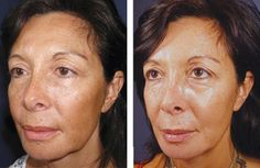 Photo courtesy of Dr Bill Johnson, Innovations Medical.  Vi Peel great for sun damage, melasma, age spots, and other pigmented scarring.  Photo left before treatment, photo right 2 weeks post treatment
