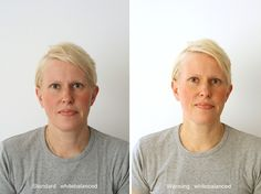 This is a great example of using the warming lightscoop for lovely, realistic skin tones.