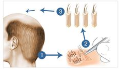 Yashi Clinic is the best hair transplant clinic in Thane, Mumbai. We offer the proven hair transplant. Know more about FUE Hair Transplant cost in India! Hair Transplant Women, Hair Transplant In India, Hair Transplant Results, Hair Transplant Surgery, Best Hair Transplant, Hair Clinic, Hair Loss Remedies, Prevent Hair Loss, Hair Restoration