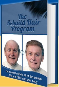 alding in girls is related to accumulation of a steroidal hormone called Dihydrotestosterone or DHT, a metabolite of the male hormone testosterone. Rebuild Hair Program Reviews.