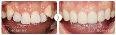 Vấn đề đặt ra là tại sao không nhổ đi hoặc trồng răng nanh nhân tạo để tiết kiệm thời gian hơn so với niềng răng mọc ngầm?