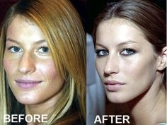 In Defense of Plastic Surgery: Your Body, Your Business.....No thanks. I'll stay the way I am. LOL