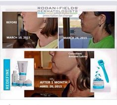 Rodan + Fields! Contact Laura for more info!!