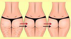 5 melhores exercícios de musculação para acabar com a celulite: níveis básico e avançado - Bolsa de Mulher