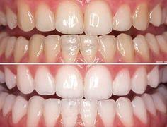 Os 10 Remédios Caseiros Para Branquear os Dentes | Dicas de Saúde