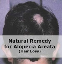 how to get rid of alopecia naturally