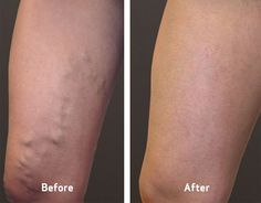 If you looking for the best #Spider_veins treatment in #Oak_Brook. then go to #Charming_Skin & Vein clinics provides the best Spider Veins treatment in #Chicago, Oak Brook. For booking an appointment call us 630-974-1400 now or click away.