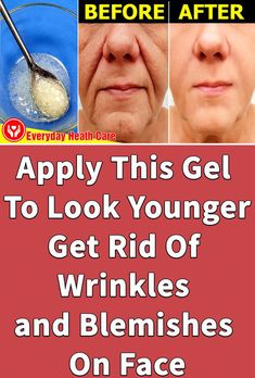 This is really a magic recipe to Remove Wrinkles, Blemishes, Stretch Marks, And Burns. One of the most clear effects this combination provides your skin is wrinkle removal which is done in a quick and smooth way. Face Care Routine, Face Care Tips, Face Skin Care, Natural Wrinkle Remedies, Best Wrinkle Treatment, Ayurvedic Skin Care, Les Rides, Face Wrinkles, Sagging Skin