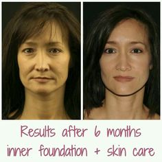 Looking for some transformation? No surgery, no botox, no needles, just quality products from the inside and outside :)  #LockYourAge  #transformation