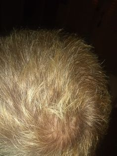Diy Scalp Detox, Long Hair Styles, Beauty, Long Hairstyle, Long Haircuts, Long Hair Cuts, Beauty Illustration, Long Hairstyles, Long Hair Dos