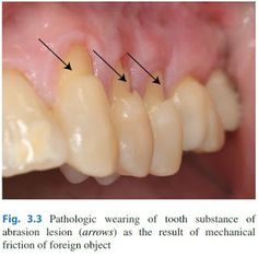 Dentosphere : World of Dentistry: Tooth Sensitivity / Dentin Hypersensitivity Tooth Sensitivity, Dentistry, Teeth, Food, Enamel, Meals, Tooth, Yemek, Eten