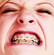 How to Make Fake Braces or a Fake Retainer. Fake braces or a fake retainer can be fun to wear as part of a costume. They can also be fun if you simply like the look of braces but do not require them. You can make fake braces and a fake. Fake Braces, Braces Tips, Dental Braces, Teeth Braces, Dental Surgery, Dental Care, Dental Hygiene, Dental Implants, Cheap Dental Insurance