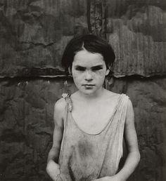1936. Dorothea Lange / Damaged Child, Shacktown, Elm Grove, Oklahoma