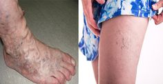 Cura y elimina definitivamente las varices o arañitas en las piernas solo con esto. - Salud y Más.