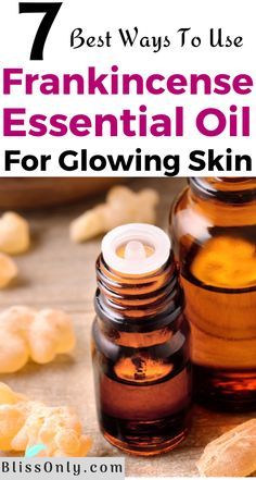 7 Frankincense Essential Oil Uses For Skin - BlissOnly Essential Oils For Face, Doterra Essential Oils, Essential Oil Blends, Frankincense Essential Oil Benefits, Frankincense Oil Uses, How To Treat Acne, The Help, Dark Spots, Oily Skin