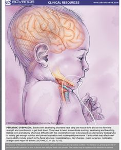 Pediatric Dysphagia-Patient Handout-Pinned by SOS Inc. Resources http://pinterest.com/sostherapy.