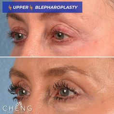 Our patient is just six short weeks out from upper blepharoplasty! Beauty Box, My Beauty, Eyelid Surgery, Facial Treatment, Health And Safety, Plastic Surgery