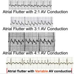 Atrial Flutter and Atrial Fibrillation