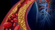 Com estes remédios naturais, você vai rapidamente normalizar colesterol e triglicerídeos! | Cura pela Natureza