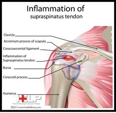 Inflammation of Supraspinatus Tendon Hand Therapy, Massage Therapy, Physical Therapy, Massage Tips, Shoulder Rehab, Shoulder Surgery, Muscle Anatomy, Body Anatomy, Shoulder Anatomy
