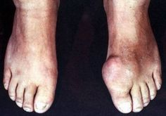 Gout is a painful condition associated with alcohol intake and rich foods high purine content, are you at risk? Gout Remedies, Writings, Drugs, Alcohol, Tasty, Foods, My Favorite Things, Health, Desserts
