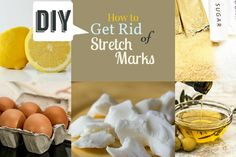The Easy Way to Get Rid of Stretch Marks