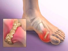Joint Pain Remedies How to Quickly Remove Uric Acid Crystallization From Your Body to Prevent Gout and Joint Pain Diuretic, Uric Acid, Turmeric Curcumin, Gota, Medical Problems, How To Do Yoga, Natural Remedies, The Cure, Herbs