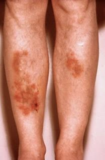 Sarcoidosis Cure - Natural Treatments For Sarcoid