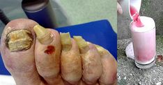 Say Goodbye To Nail Fungus Remedy With This Fabulous Only 2 Ingredients Toe Fungus, Nail Fungus, Vicks Vaporub, Infection Fongique, Psoriasis Diet, Hypothyroidism Diet, Fat Fast, Natural Remedies, Home Remedies