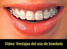 Video: Ventajas del uso de brackets   OdontoFarma