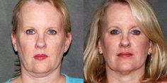 Worth It... #ultherabillingsmt #toenailfungustreatmentbillngsmt #nonsurgicalnecklift #nonsurgicalfacelift