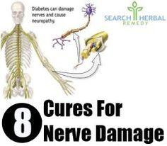 9 Natural Treatments For Nerve Pain - How To Treat Nerve Pain Naturally | Search Herbal & Home Remedy