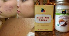 This combination is great for getting deep into your pores to prevent acne and blackheads. When mixed together, these two products work very well in treating ac. Baking Soda For Deep Acne Scars Pimple Marks Removal Cream, Acne Scar Removal, Baking With Coconut Oil, Coconut Oil For Acne, Baking Soda Face, Baking Soda Shampoo, Homemade Scrub, Homemade Facials, Homemade Beauty