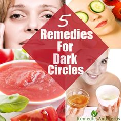 5 Useful Home Remedies For Dark Under Eye Circles