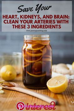 Save Your Heart, Kidneys, and Brain: Clean Your Arteries With These 3 ingredients – Health Natural Health Remedies, Natural Cures, Herbal Remedies, Natural Healing, Natural Foods, Natural Oil, Natural Cough Remedies, Cold Remedies, Natural Treatments