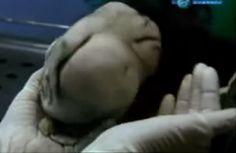 Estranha Criatura (ALIEN?) Encontrada dentro do Estomago de uma Criança de 7 anos.
