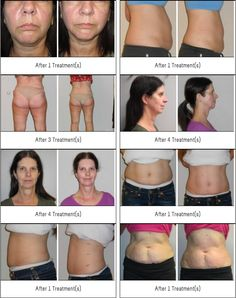 """Outstanding """"Healthy Skin Cream"""" information is readily available on our site. Take a look and you wont be sorry you did. Coconut Oil Cellulite, Cellulite Scrub, Cellulite Remedies, Reduce Cellulite, Radio Frequency Skin Tightening, How To Treat Eczema, Cell Membrane, Body Treatments"""