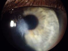 Opacidade de córnea por hidrópsia.