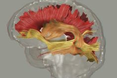 In the largest international analysis of white matter to date researchers from USC and other institutions say schizophrenia disrupts the brains entire communication system - Wiring is frayed in more than just one region