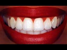 BLANQUEA tus dientes en MINUTOS! (remedio casero) - YouTube