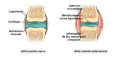 ¡Los métodos de tratamiento de las articulaciones que se implican en Colombia no parecen nada convenientes! Looking For Women, Medicine, In This Moment, Breakfast Nook, Health Care, Health Recipes, Health Remedies, Nerve Pain, Knee Pain