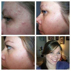 More great Before & After pics after using the Rodan+Fields UNBLEMISH Regimen. Visit my website for more info!