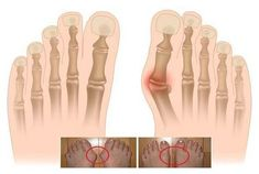 Keep the Bunion Surgeon Away With These Bunion Tips Bunion Exercises, Body Hacks, Alternative Therapies, Meditation, Diabetes, Detox, Health Fitness, Workout, Simple