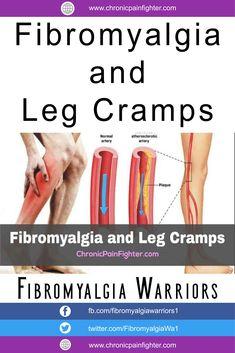 Fibromyalgia and Leg Cramps - Chronic Pain Fighter Fibromyalgia Disability, Signs Of Fibromyalgia, Fibromyalgia Pain Relief, Fibromyalgia Syndrome, Fibromyalgia Treatment, Chronic Fatigue Syndrome, Chronic Illness, Chronic Pain, Fibromyalgia Exercise