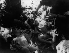 Children being treated from burns caused by the atomic explosion in Nagasaki.photo @ Yosuke YAMAHATA/MAGNUM distribution.