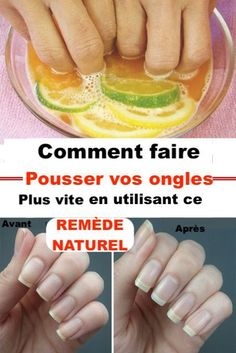 Comment faire pousser vos ongles plus vite en seulement 8 jours avec ce remède … How to grow your nails faster in just 8 days with this powerful natural remedy Diy Beauty, Beauty Hacks, Beauty Women, Grow Nails Faster, Nail Soak, Alcohol Free Toner, Strong Nails, Homemade Butter, Slow Food