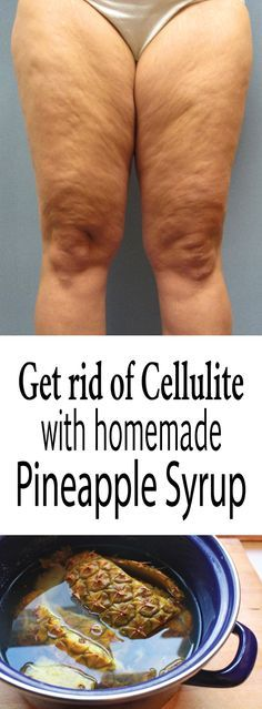 Get rid of cellulite with homemade pineapple syrup