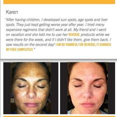 Wow! She looks great! So glad I found Rodan+Fields and am able to share it with you.