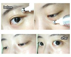 #redergen#brightening#estheticcosmetics#koreabeauty#koreacosmetics#skincare#eyecontrol#eyecream#eyebag